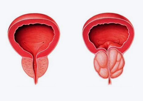Cancêr de Próstata